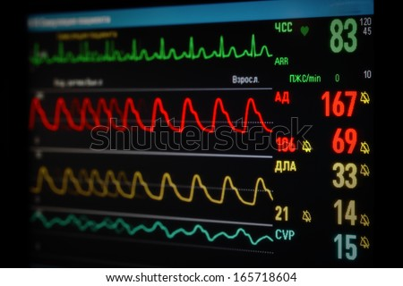 monitor with curvesoxygen saturation, blood pressure, ECG, pulmonary artery pressure - stock photo