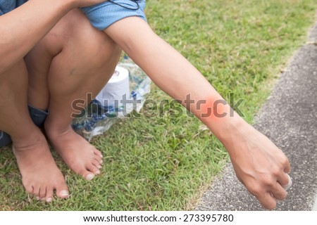 Mosquito bites  arm women  in the park. - stock photo