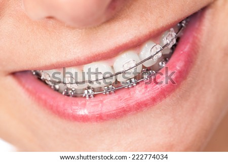 Mouth with braces and beautiful teeth - stock photo