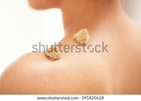 Moxibustion acupuncture needles heat on woman shoulder - stock photo