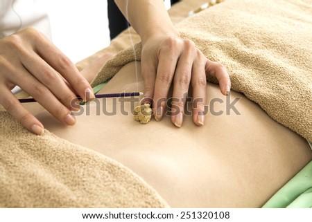 Moxibustion of abdominal - stock photo