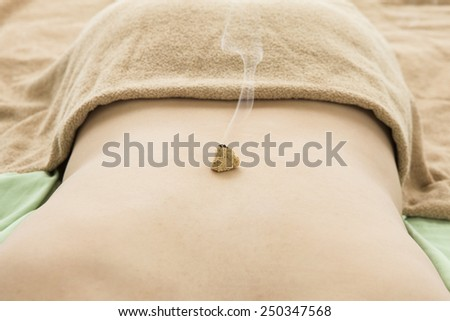Moxibustion placed on top of the back  - stock photo
