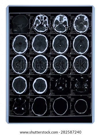 MR-scan of a brain. - stock photo