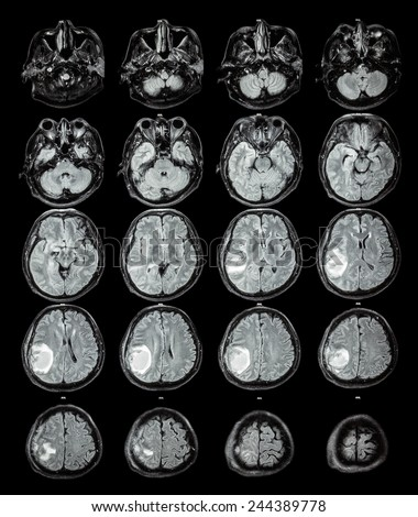 MRI brain : Brain tumor at right parietal lobe