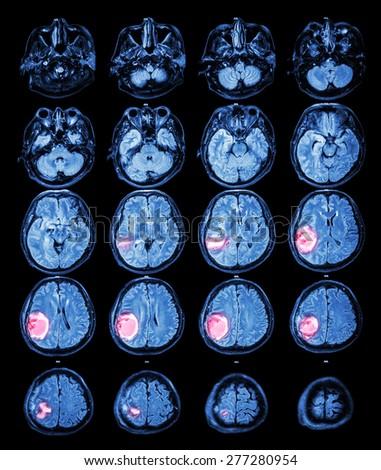 MRI brain : Brain tumor at right parietal lobe - stock photo