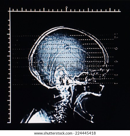MRI Head - stock photo