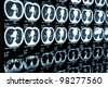MRI of human brain - stock photo