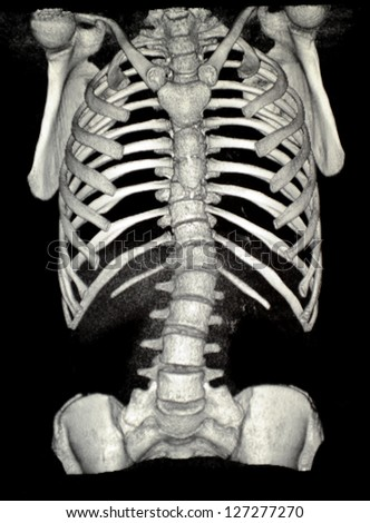 mri of spine - stock photo