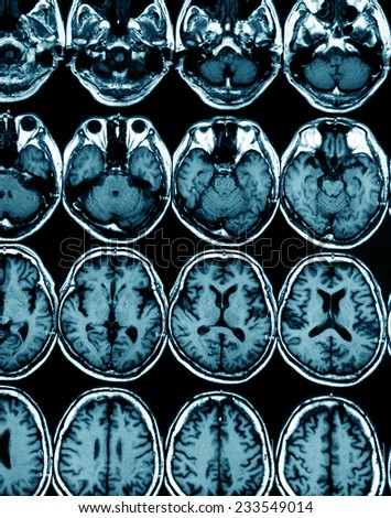 MRI scan image of brain for diagnosis - stock photo