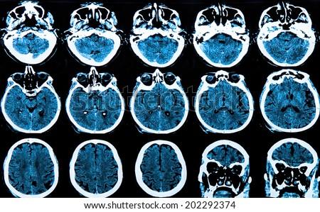 MRI scan of the human brain - stock photo