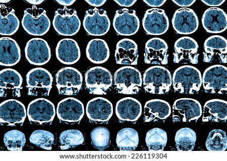 MRI scan of the human brain