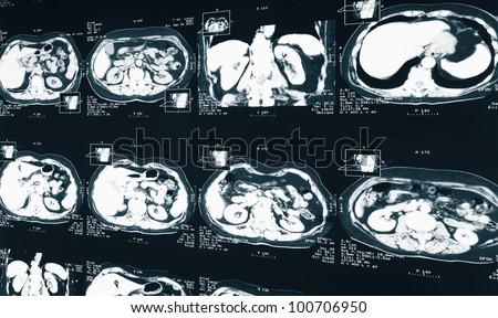 MRI.  X-ray of the human kidney - stock photo