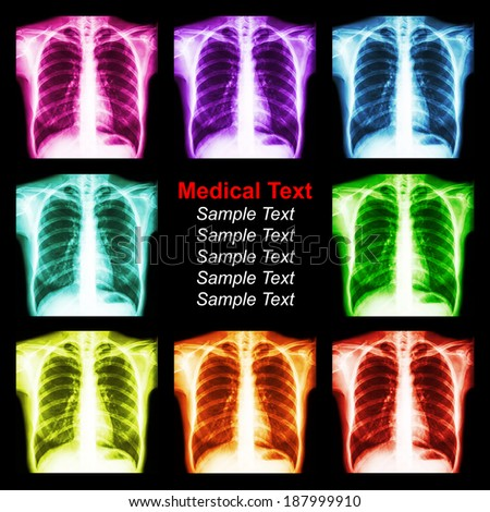 Multicolored chest x-ray background - stock photo