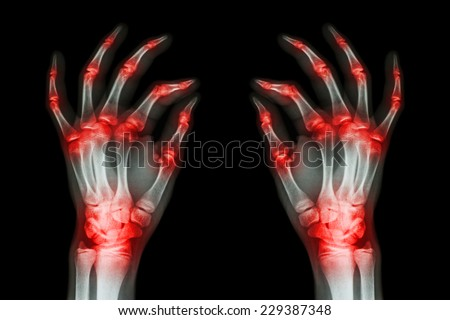 multiple joint arthritis both adult hands ( Gout , Rheumatoid ) on black background - stock photo