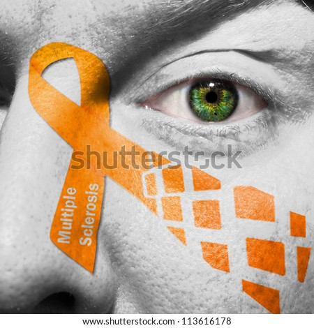 Multiple Sclerosis is a disease of the brain and spinal cord. The Orange Ribbon represents MS.