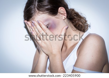 Mutilated women cover her bruised face with shame - stock photo
