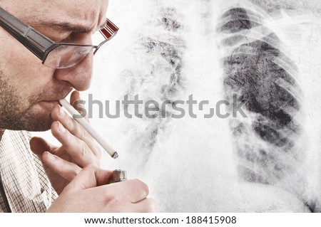 Nervous man is smoking cigarette. Smoking causes lung cancer and other diseases. - stock photo