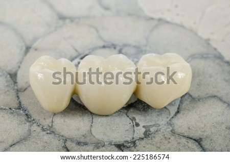 new teeth on ammonite - stock photo