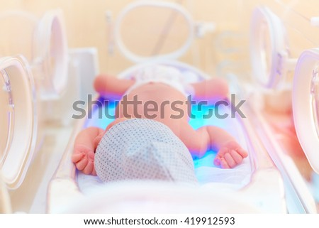 newborn baby get the light therapy in infant incubator