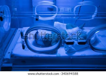 Newborn Baby having UVB phototherapy treatment for jaundice in hospital - stock photo
