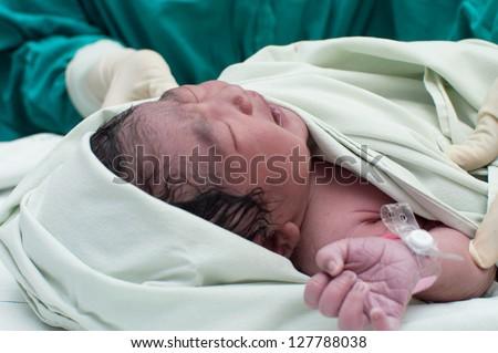 Newborn baby in the operating theater. - stock photo