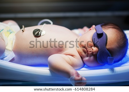 newborn baby laying on special bed uv phototherepy for jaundice