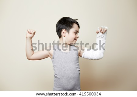 nice smiling boy with hand in cast flexing biceps - stock photo