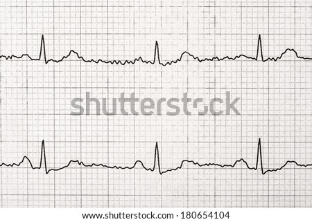 Normal Electrocardiogram Record On Paper - stock photo