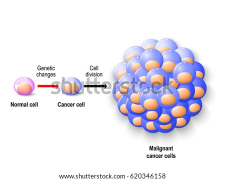 malignant neoplasm stock images, royalty-free images & vectors, Skeleton