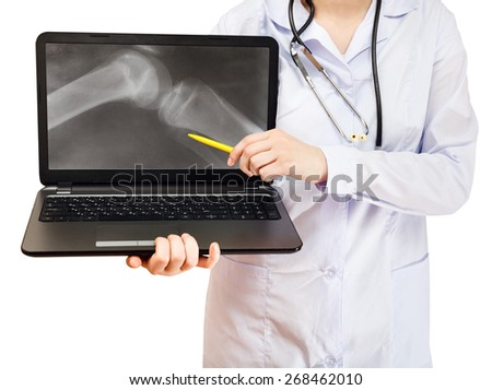 nurse points on computer laptop with X-ray picture of human knee joint on screen isolated on white background - stock photo