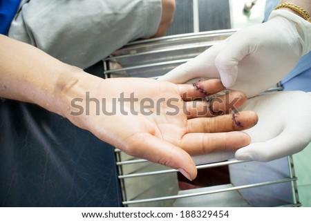 Nurse working bathe the wound - stock photo