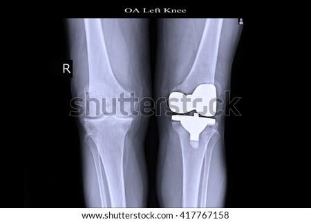 OA Knee, Cemented TKR left Knee,  - stock photo