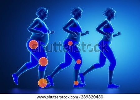 Obesity joint problem concept - stock photo