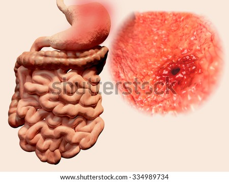 Occurrence of gastric ulcera in the gastrointestinaltract - stock photo