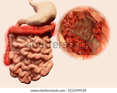 Occurrence of malign tumors in the gastrointestinal tract - stock photo