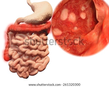 Occurrence of ulcerative colitis in the gastrointestinal tract - stock photo