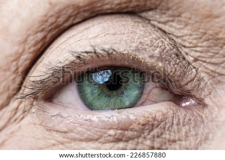 old eye - stock photo