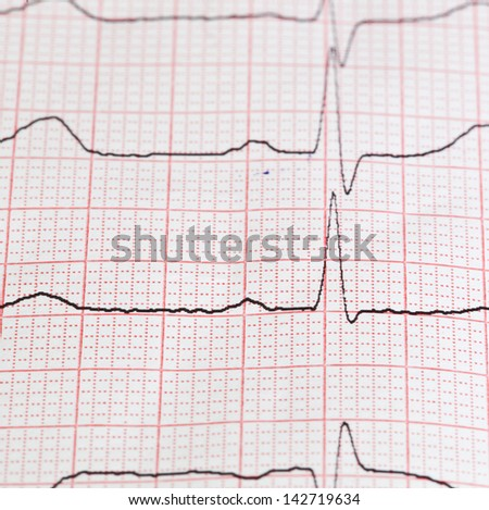 On photo cardiogram on paper