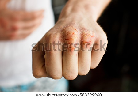 One Caucasian man hand with psoriasis on a white background. Problematic eczema skin. Dermatology and medicine photo