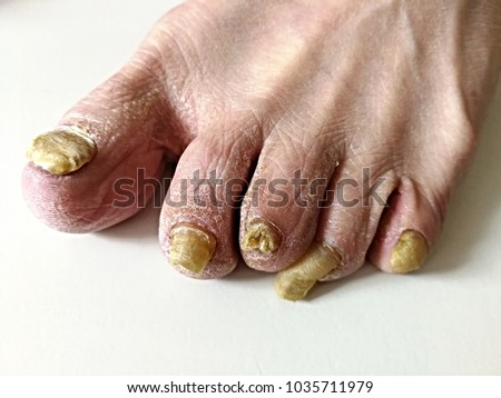 Onychomycosis Fungal Infection Nail Most Common Stock Photo Royalty