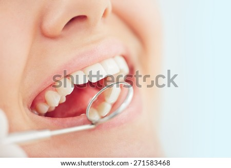 Open mouth of woman during checking teeth - stock photo