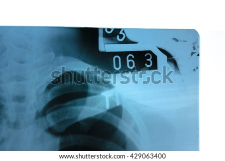 Operate on collarbone, X-ray film results - stock photo