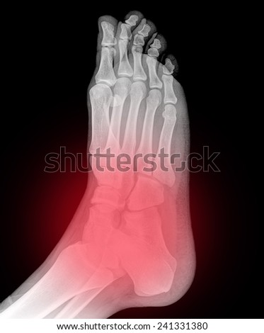 Original x-ray image of a foot, front  view - stock photo