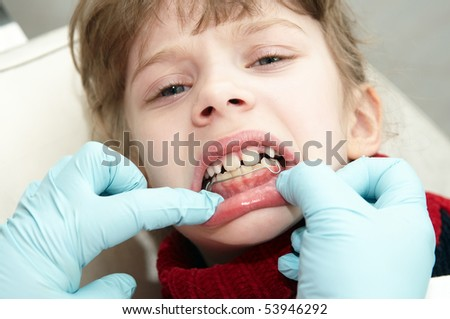 orthodontic doctor examine teeth and gums of little girl jaw