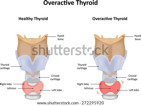 Overactive Thyroid - stock photo