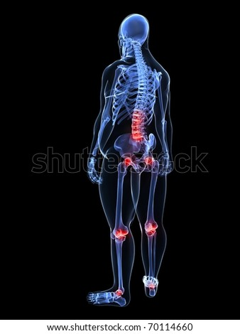 overweight man - painful joints / backache
