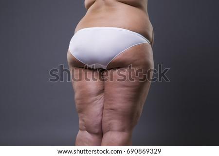 On bad legs cellulite