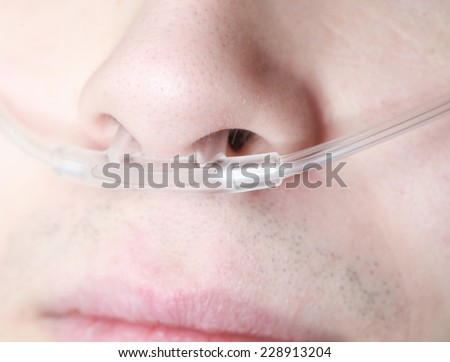 Oxygen lines in the nose of an asthmatic  - stock photo