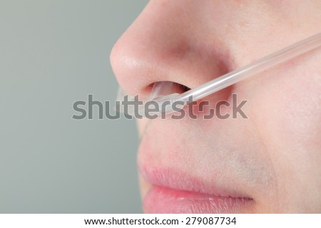 Oxygen tube in the patient's nose - stock photo