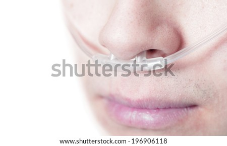 Oxygen tube on the face of a critically ill patient. Perhaps professional use of image - stock photo